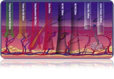 Penetración según longitud de onda.